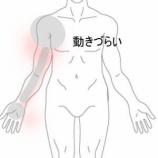 『腕が動かしづらい 室蘭登別すのさき鍼灸整骨院 症例報告』の画像
