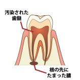 『歯の神経の治療方法【ふかさわ歯科クリニック】』の画像