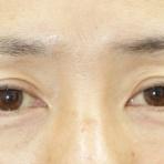名古屋のこいずみ形成クリニックの眼瞼下垂コラム