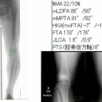 スポーツ整形外科医S. Uのブログ  Sports Physician  S.U Blog