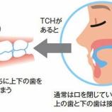 『TCHってなに?【篠崎 ふかさわ歯科クリニック】』の画像