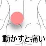 『うたたね後腰痛 室蘭登別すのさき鍼灸整骨院 症例報告』の画像