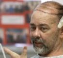 腫瘍手術で頭蓋骨と頭皮失った男性(55)に頭蓋骨と頭皮移植 「若い頃より髪が増えたよHAHAHA」