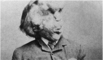 見世物小屋に自らを売り出し…実在したエレファントマン『ジョゼフ・メリック』の数奇な人生