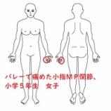 『≪打撲によるMP関節の痛み≫~グーを作れない、力を入れると痛い小5の女子~』の画像