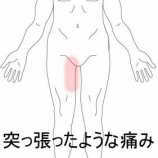 『軽い肉離れ 室蘭登別すのさき鍼灸整骨院 症例報告』の画像