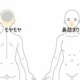 『鼻詰まりと頭痛 室蘭登別すのさき鍼灸整骨院 症例報告』の画像