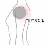 『ゴリゴリとなる肩 室蘭登別すのさき鍼灸整骨院 症例報告』の画像