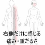 『右側だけに現れる症状 登別室蘭すのさき鍼灸整骨院症例報告』の画像