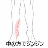 『三角骨障害 登別室蘭登別すのさき鍼灸整骨院 症例報告』の画像