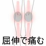 『下半身全般の痛み 室蘭登別すのさき鍼灸整骨院 症例報告』の画像