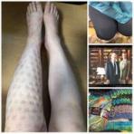 南東風のリンパ浮腫のブログ