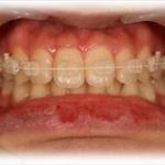 歯の矯正詳しいの来てやwww