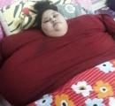 「体重500キロ」の女性、手術で体重半分に・・・インド