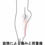 『足関節捻挫 室蘭登別すのさき鍼灸整骨院 症例報告』の画像