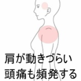 『『石灰沈着性腱板炎』による肩の違和感、頭痛 室蘭登別すのさき鍼灸整骨院症例報告』の画像