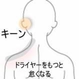 『耳鳴り 室蘭登別すのさき鍼灸整骨院 症例報告』の画像