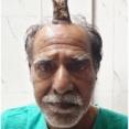 【都怒我阿羅斯等】頭に「悪魔の角」を持つ男性、除去手術が無事成功 これまでは近所の理髪店で時々カットしてもらっていた インド