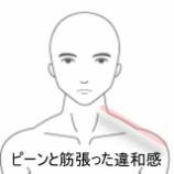 『寝違え 室蘭登別すのさき鍼灸整骨院 症例報告』の画像