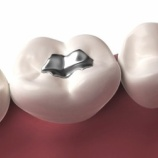 『WiFiが歯のアマルガムからの水銀流出を促進する可能性』の画像