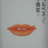 『口唇ヘルペスでした』の画像