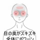 『妊娠中の眼の悩み 室蘭登別すのさき鍼灸整骨院 症例報告』の画像