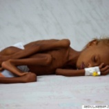 『なぜノーベル賞に推薦?米国の犠牲で死んでいくイエメンの子供たち』の画像