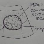 【1記事3分】超音波検査士けんしんのエコーノート